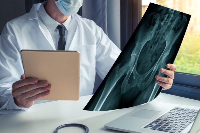 αναθεώρηση αρθροπλαστική ισχίου